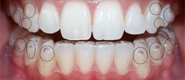 отьеливание зубов в Беларуси и Минске